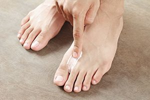 photo of a man appyling antifungal cream on his foot